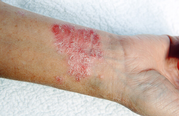 Red, scaly skin patch known as plaques on left wrist