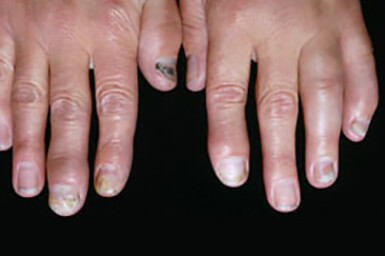 What Are The 5 Different Types Of Psoriatic Arthritis